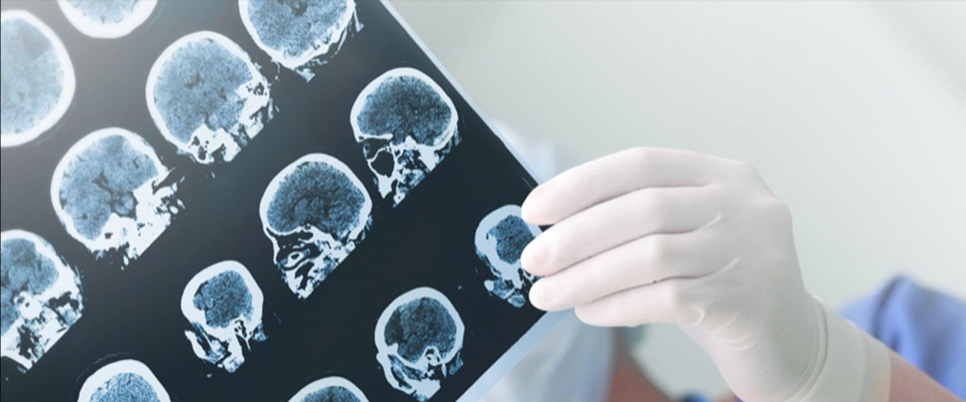 topo-neurocirurgia